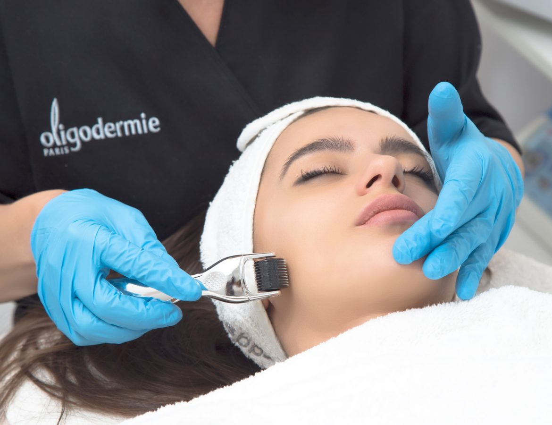 Dermaroller-Oligodermie-treatment