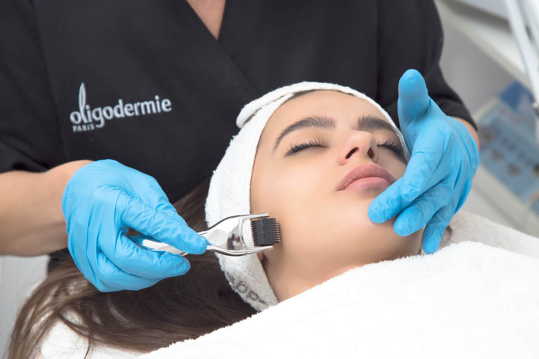 Dermaroller beauty treatment